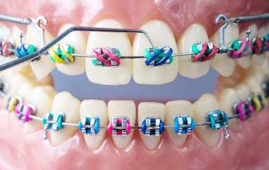 Orthodontics | Learn the difference between orthodontics and jaw orthoses