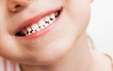 Children's teeth Wrong habits for the mother during pregnancy cause damage to her baby's teeth!