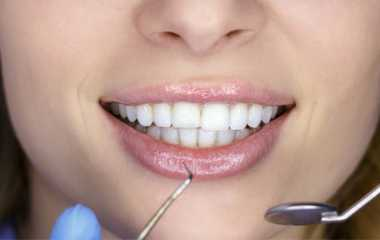 How to avoid visiting the dentist? | Prevention and treatment methods