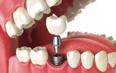 Dental implants and cosmetology  | Benefits, cost, and risks